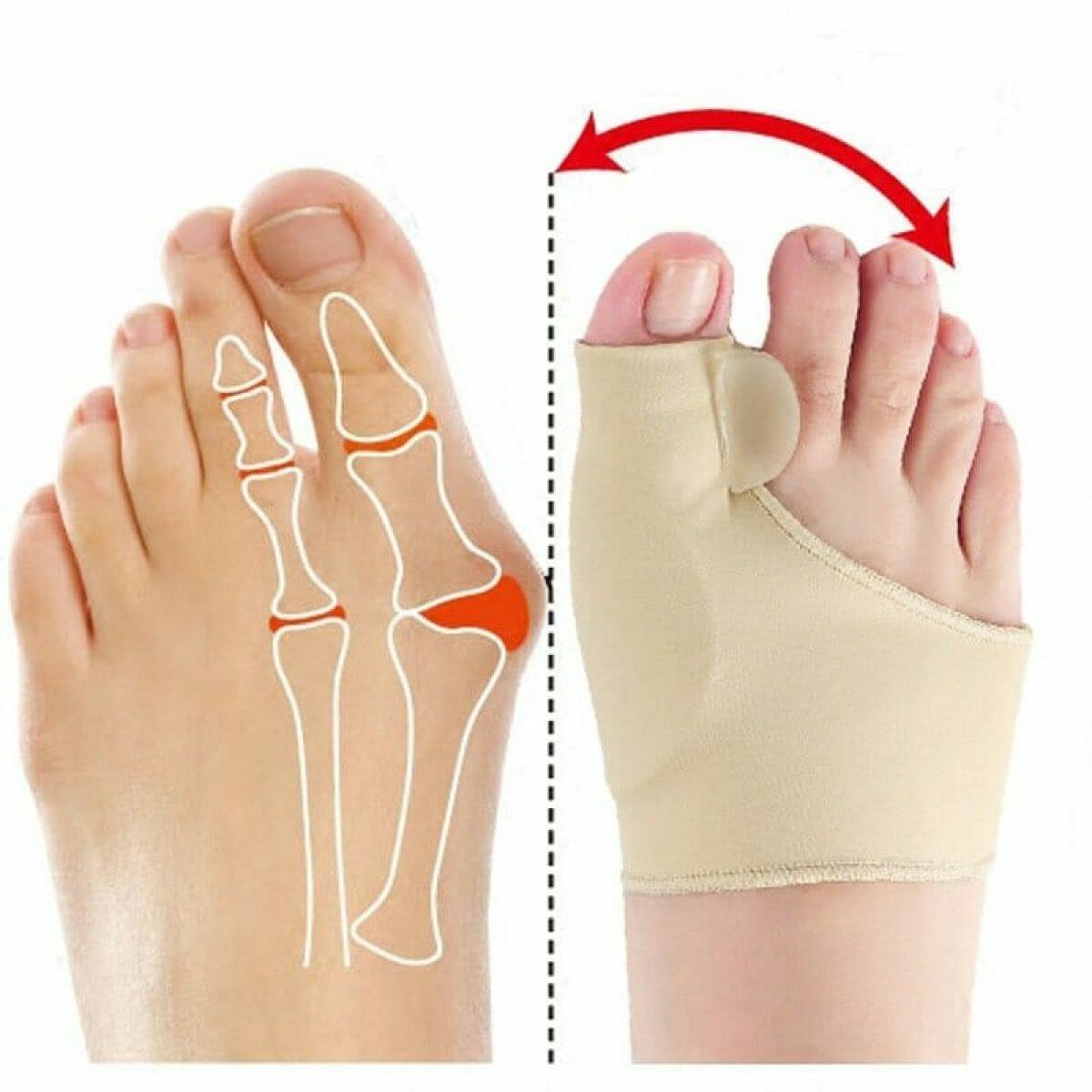 Corretor ortopédico para joanetes - 1 par