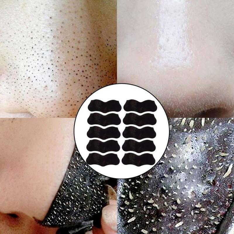 Adesivo Removedor de Cravos Perfect Skin